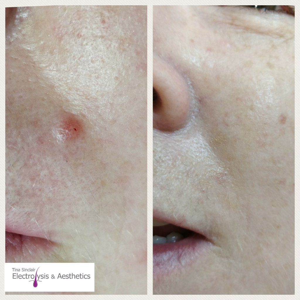 Cosmetic Blemishes (Mole Reduction) -