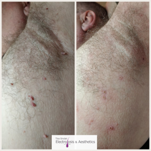 skin tag removal scotland